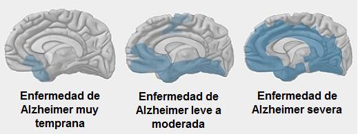alzheimer-fases